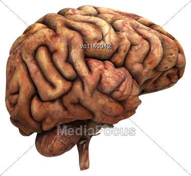 3d digital render sick human brain white background stock image3d digital render of a sick human brain isolated on white background stock photo