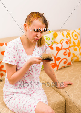 Adult Woman With Depression Symptoms Because Of Peeled Head Part After Haircut Stock Photo