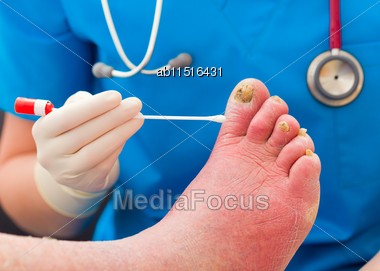 Close-up Of Dermatologist Taking Samples From Elderly Patient's Severe Nail Fungus Stock Photo