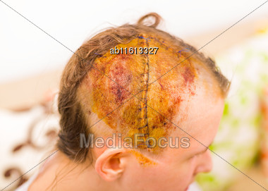 Close-up Of Young Woman's Head With Suture After Neurological Craniatomy Stock Photo
