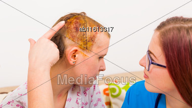 Doctor After Neurosurgery Of Brain Oedema Investigating Her Head's Suture Stock Photo