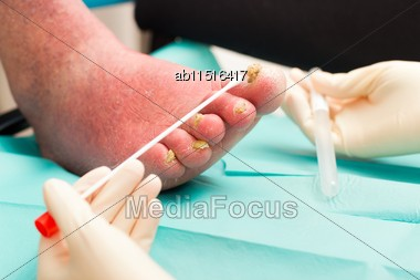 Old Arteriosclerotic Leg With Severe Fungal Infection Being Examined By Dermatologist Stock Photo