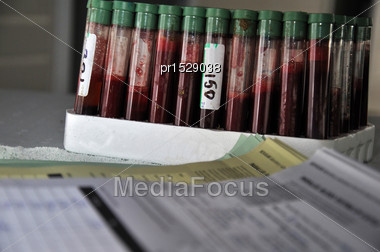 Rack Of Blood Samples For Bovine Tuberculosis In Dairy Cows, West Coast, South Island, New Zealand Stock Photo