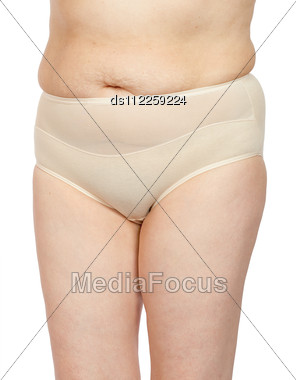 Women With A Cellulitis On A Stomach Stock Photo