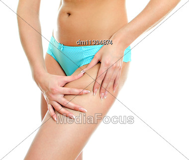 Young Woman Folding Skin On Her Hips With Both Hands. Isolated On White Stock Photo